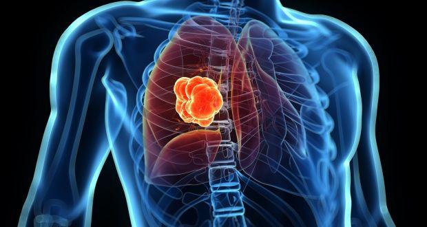 شیمی درمانی سرطان ریه بدخیم و خوش خیم, مهمترین نشانه سرطان ریه
