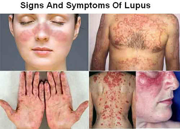 لوپوس چیست؟ + انواع بیماری لوپوس و علائم و راه های درمان آن