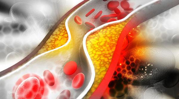 چگونه کلسترول خون را کاهش دهیم