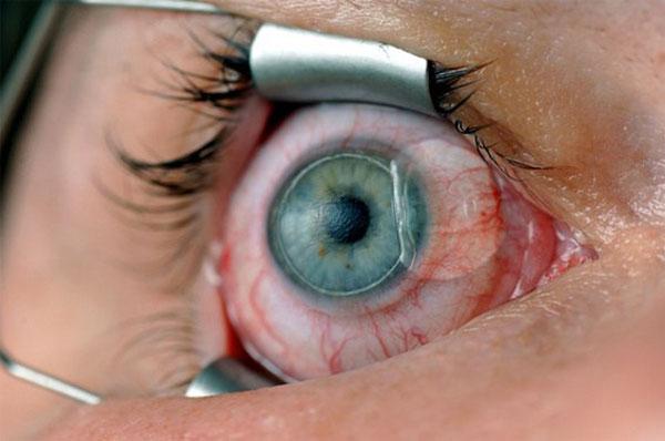 لیزیک و لازک چشم چیست