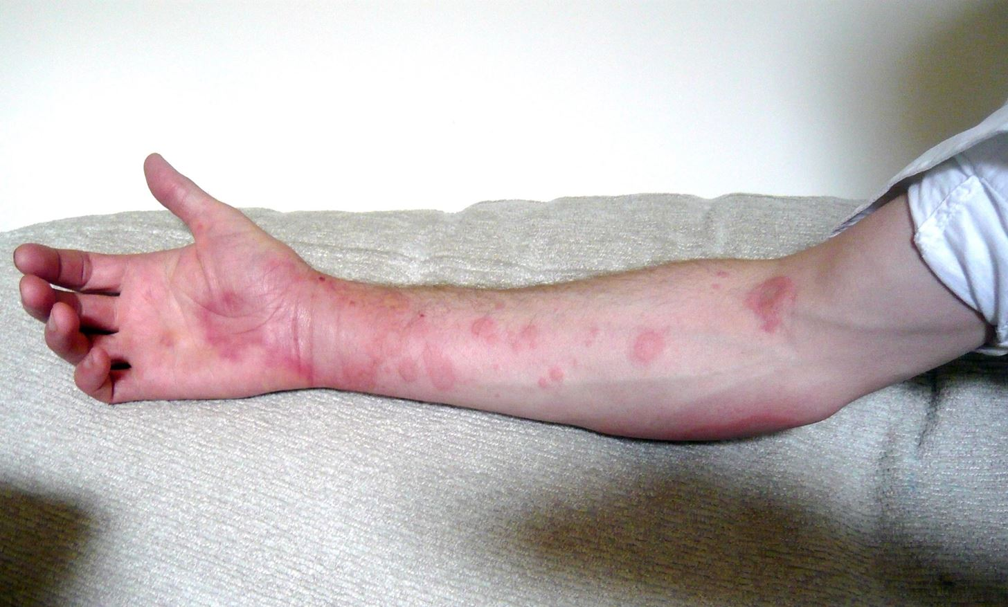 حساسیت به پنی سیلین, درمان حساسیت به پنی سیلین