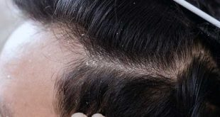 شوره سر چیست و رفع دائمی و درمان سریع شوره سر با طب سنتی